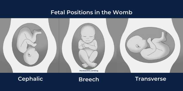 fetal positions in the womb