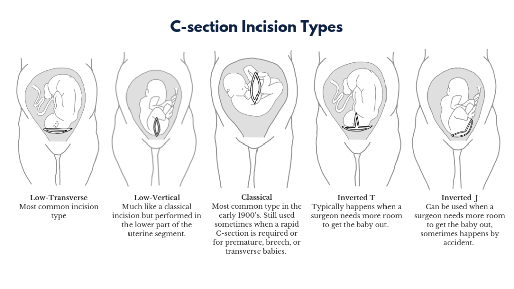 c section scar types